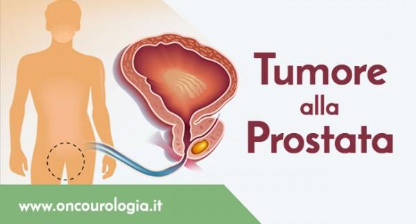 carcinoma prostata metastatizzato resistente alla castrazione